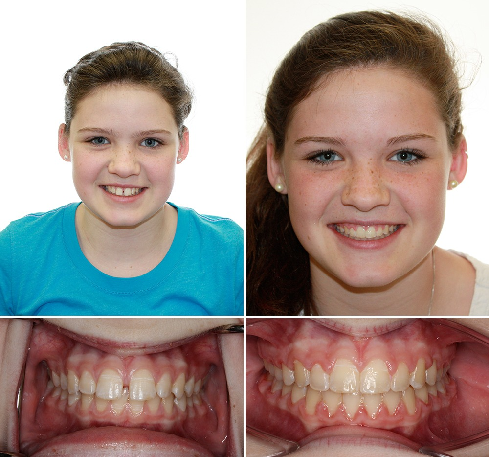 patient before and after photos